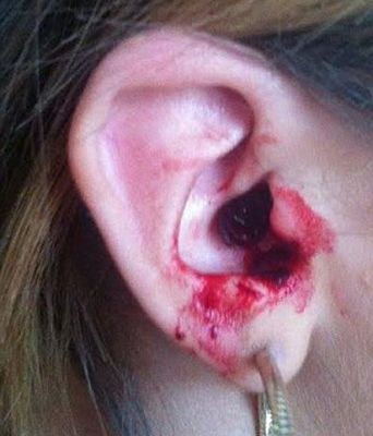 Marnie's ear bleeding