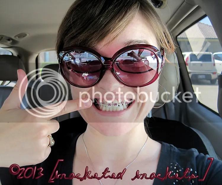 Teeth be braced!