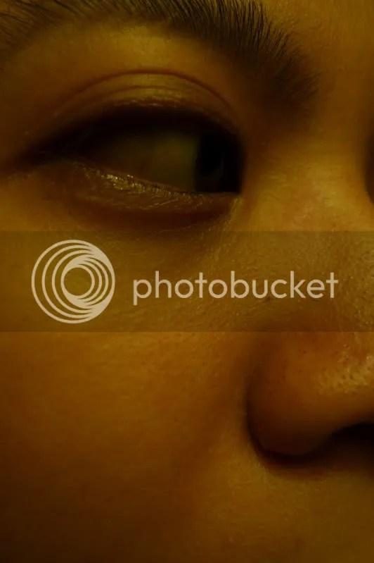Blackheaded nose.