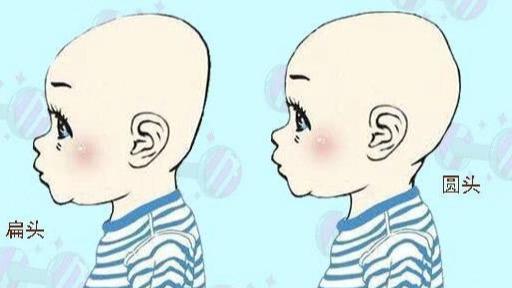 「腦勺高,寶寶頭型與智商掛鈎?家長們別再被誤導了 - 壹讀