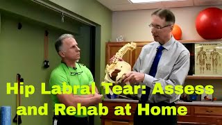 Download Hip Labrum Tear- How to Assess & Rehab at Home Video