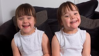 Download Down's Syndrome Twins Are One In A Million Video
