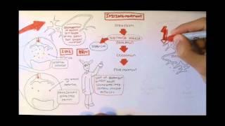 Download Neurodegenerative Disorder II - Parkinson's and Huntington's Video