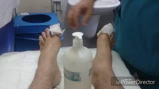 Download Tırnak batması emeliyatı sonrası // İLK PANSUMAN Video