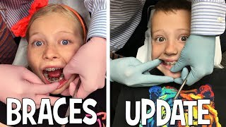 Download We Are Braces Twins!! Video