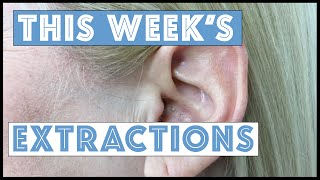 Download This Week's Extractions!! Video