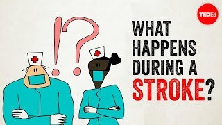 Download What happens during a stroke? - Vaibhav Goswami Video