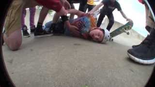 Download bmx knockout seizure and concussion Video
