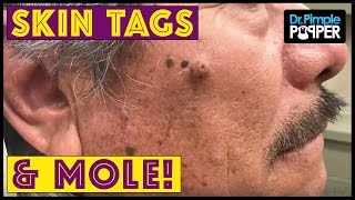Download Holy MOLE-y! & Skin Tags Video