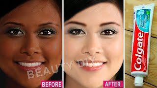 Download I Applied Toothpaste On My Skin & See What Happened │ 7 Amazing Toothpaste Beauty Hacks│100% Working Video