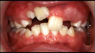 Download Before and After Braces at The Orthodontic Centre, Palmerston North Video