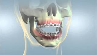 Download Hayward Braces: Jaw Surgery for Open Bite Video