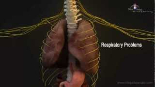 Download 3D Medical Animation - Central Nervous System Video