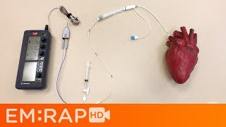 Download Placing a Transvenous Pacemaker Video