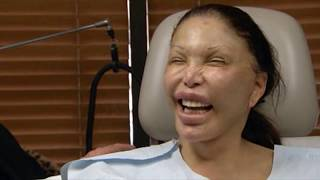 Download 10 Worst Cases Of Plastic Surgery Gone Wrong Video