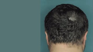 Download Drug Restores Hair Growth in Patients with Alopecia Areata Video