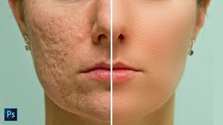 Download High-End Skin Softening in Photoshop - Remove Blemishes, Wrinkles, Acne Easily and Quickly Video