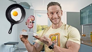 Download Keto and Your Kidneys: The Bizarre Truth Video