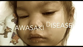 Download kawasaki disease 2018 Video