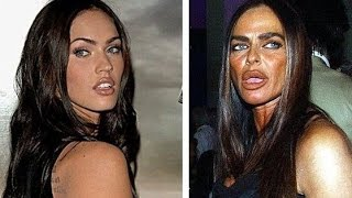 Download 17 Worst Celebrity Plastic Surgeries Video