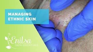 Download Managing Ethnic skin (Extractions part 2) Video