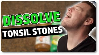 Download Dissolve Tonsil Stones At Home With Only 3 Ingredients Video