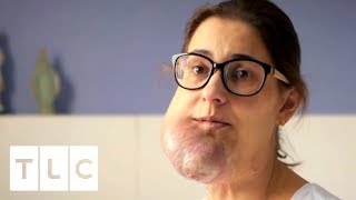 Download Huge Face Tumour Started as a Birthmark | Body Bizarre Video