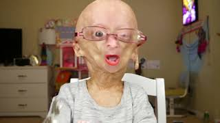 Download Adalia Rose gets her checkup at Boston Children's Hospital Video