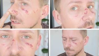 Download LOOK AT MY FACE - THIS IS THE YAG LASER! Video