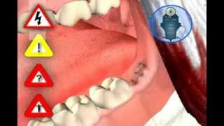 Download Wisdom Tooth Extraction Video