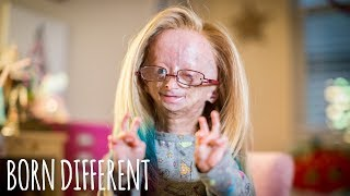 Download Adalia Rose: The Girl Who Ages Too Fast | BORN DIFFERENT Video