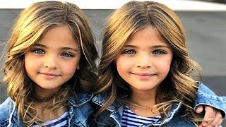 Download 5 MOST UNUSUAL AND BEAUTIFUL KIDS IN THE WORLD Video