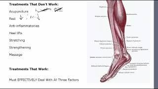 Download Achilles Tendonitis Treatment Video