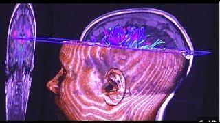 Download Esquizofrenia, nuevos descubrimientos psiquiátricos. Video