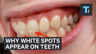 Download Here's why some people have white spots on their teeth Video