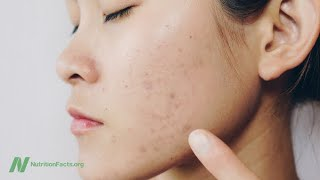 Download Saving Lives By Treating Acne With Diet Video