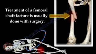 Download Fracture of the Femur and its fixation - Everything You Need To Know - Dr. Nabil Ebraheim Video