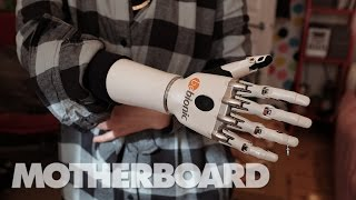 Download Living With Future Prosthetics Video