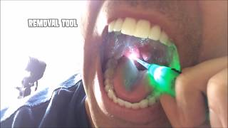 Download Tonsil Stone Removal Video