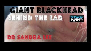 Download Giant Blackhead, Dilated Pore of Winer, behind the ear extracted Video