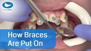 Download How braces are put on - AMAZING ! - Now with 12 month - Progress : https://goo.gl/jXaY15 Video