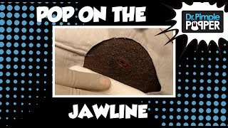 Download One Very HAPPY POP with Dr Pimple Popper 🙂😄 Video