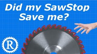 Download My table-saw injury (and SawStop discussion) Video