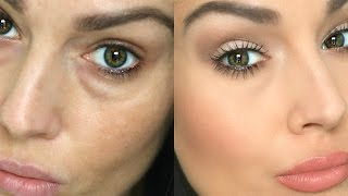 Download How to Conceal Under Eye Circles / Bags Video