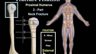 Download Fracture Fixation Animation - Everything You Need to Know - Dr. Nabil Ebraheim Video