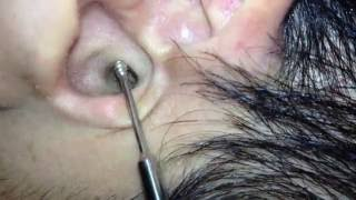 Download 耳かきくらぶ【その38 】- Ear cleaning,Ear wax removal How to clean ear wax Part38. - 귀청소38 - 귀파기38 - 掏耳朵38 Video