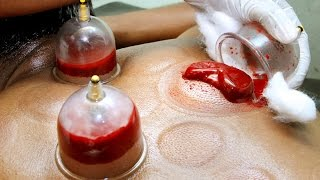 Download Hijama treatment in Gulf countries | Gulf round up 19 May 2017 Video
