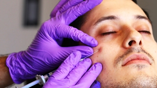 Download People Get Eye Bag Removal Injections Video