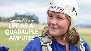Download Life as a Quadruple Amputee Video