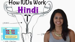 Download How an IUD Works - Hindi Video